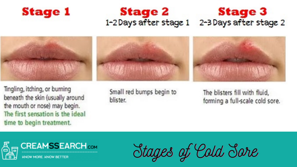 Stages of Cold Sores