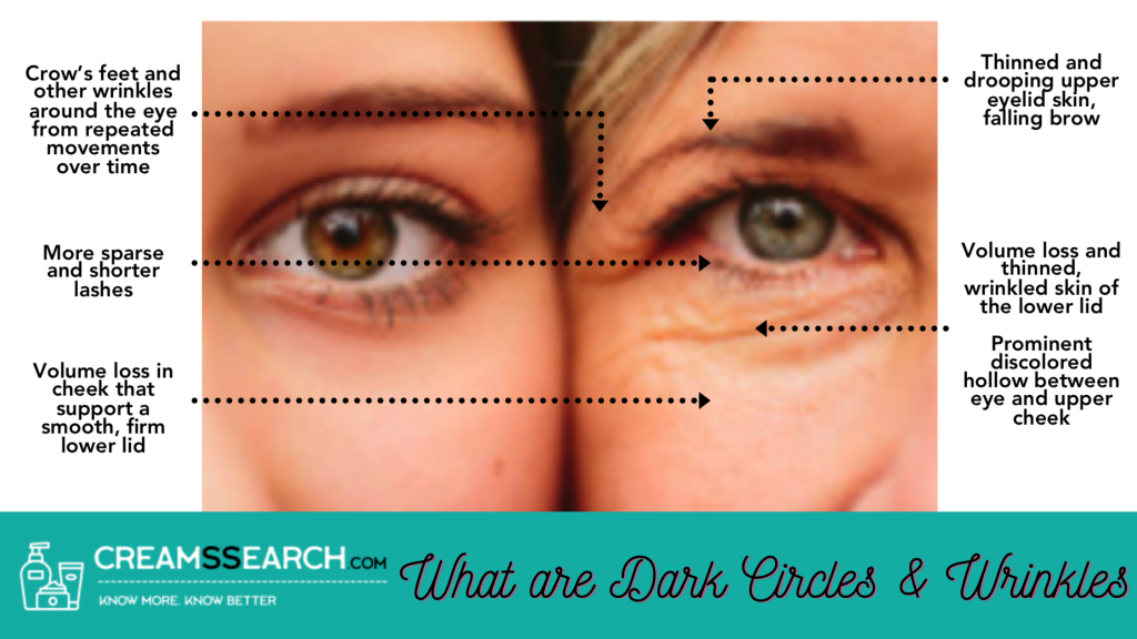 What are Dark Circles & Wrinkles