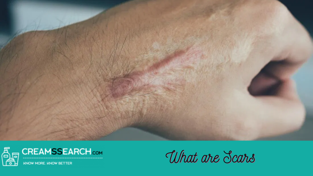 What are Scars