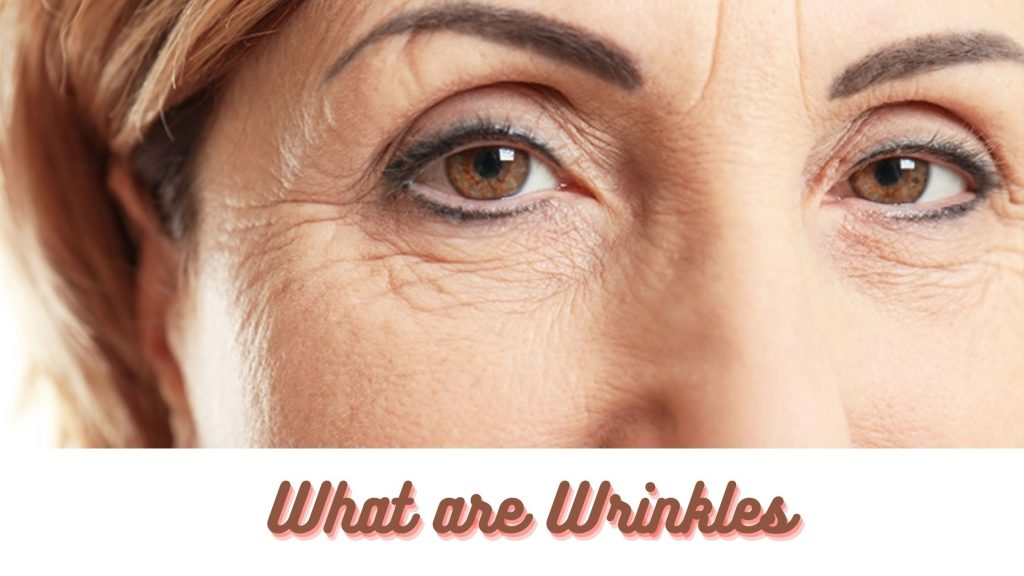 What are Wrinkles