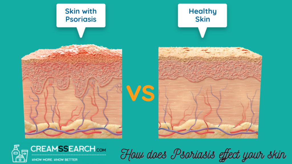 how does psoriasis effect your skin