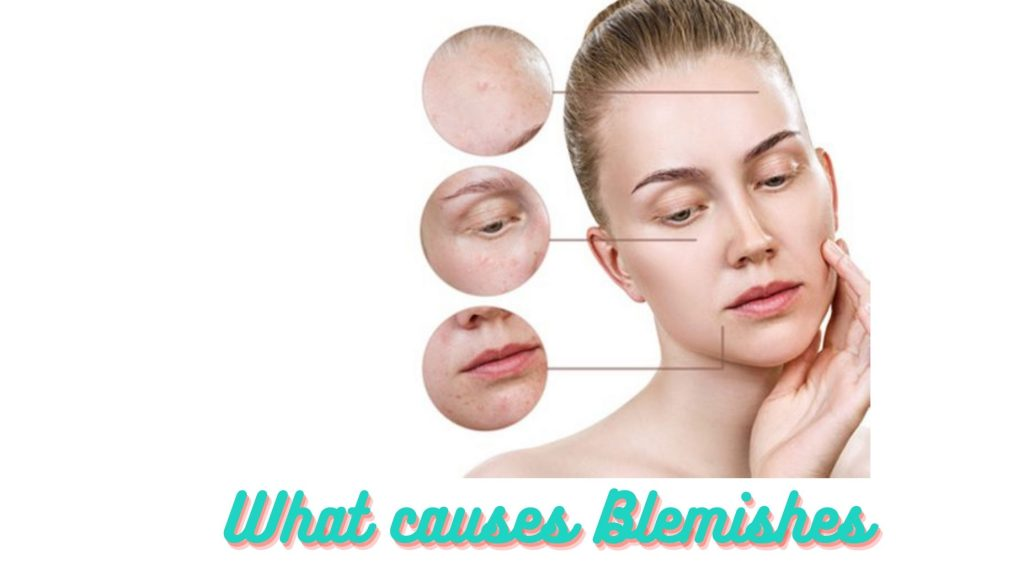 what causes blemishes